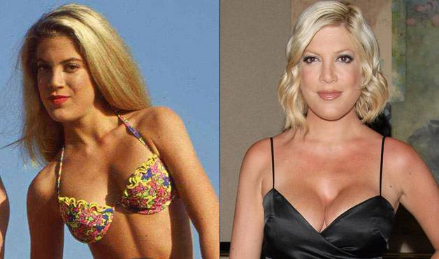 54eab1458a130_-_07-botch-plastic-surgeries-tori-spelling-lifestyle-1