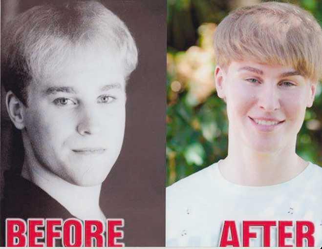 Toby-Sheldon-Justin-Bieber-Plastic-Surgery-Strange-Addiction-Photos-Video1
