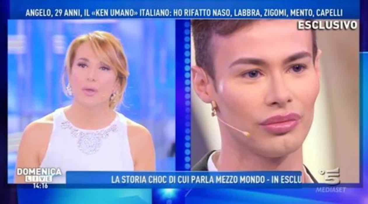 Mamma Ken italiano dal chirurgo plastico