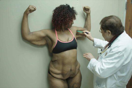 Jessica Skin Tight, la mia nuova pelle: come sta oggi dopo l'operazione?
