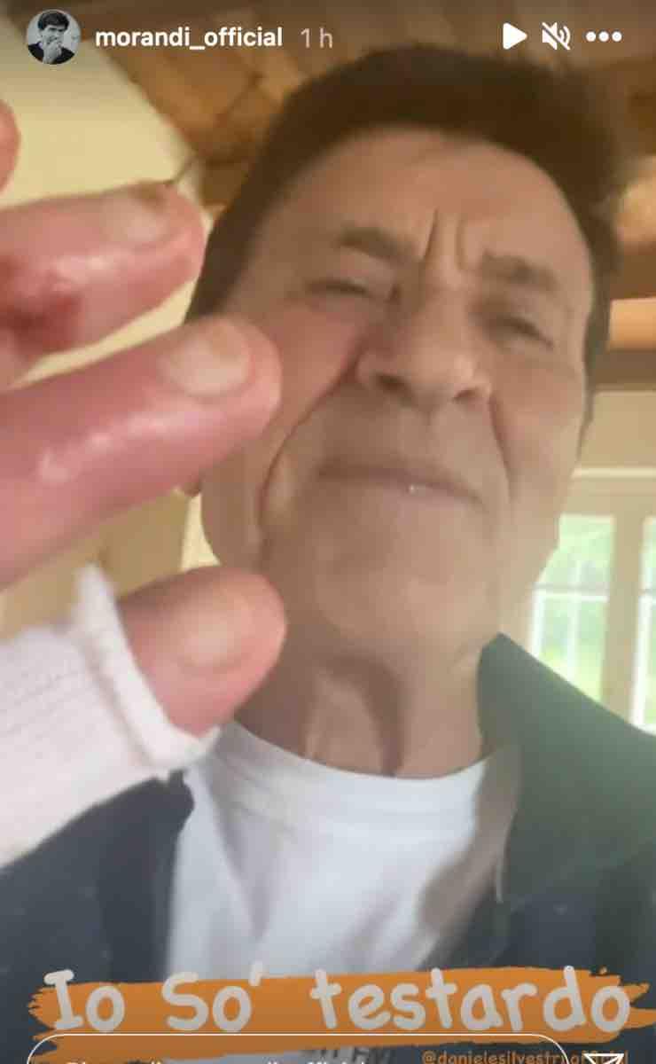 """Gianni Morandi non molla: l'artista anche oggi ci riprova """"So testardo"""""""